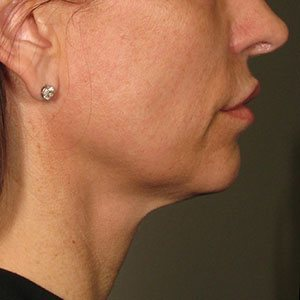 Ultherapy-000P-015Y_360Day-1TX_AFTER_Lower_low-res