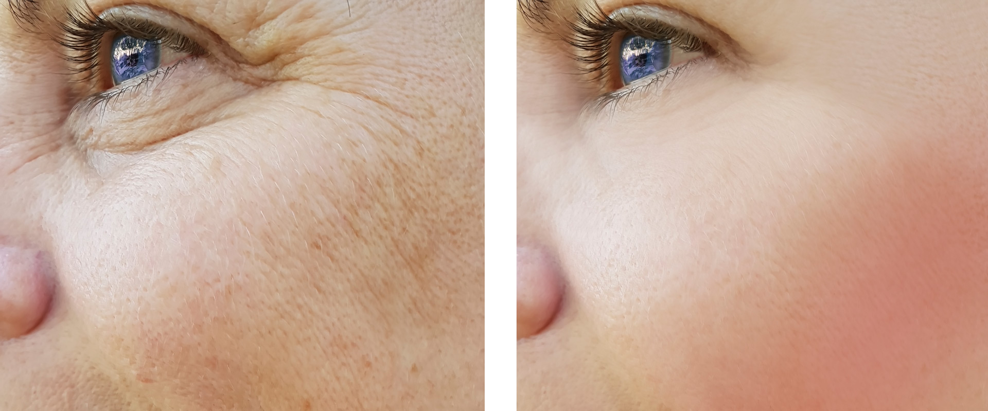 Skin-Before-After-IPL