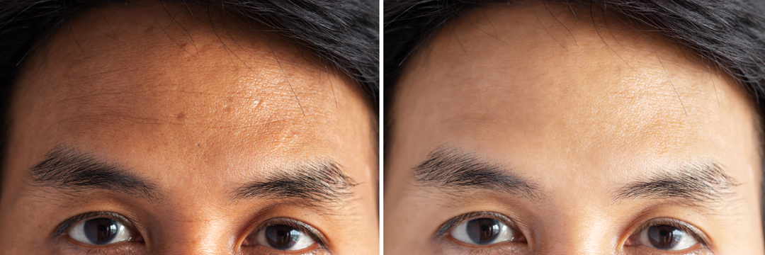 Forehead-Before-After-TPD